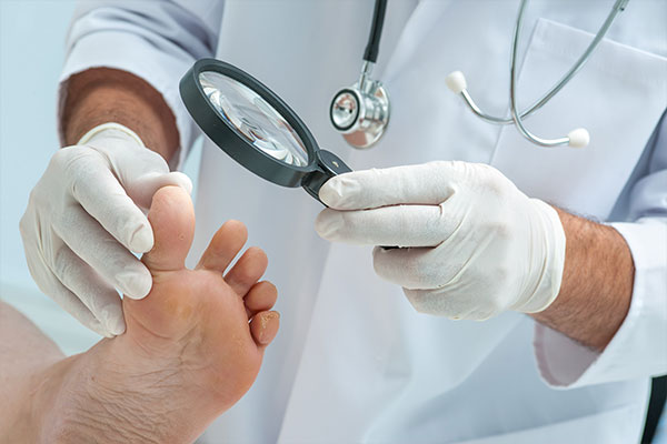 Have you been diagnosed as having a fungal nail infection by your general practitioner?
